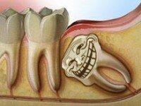Как вырвать зуб
