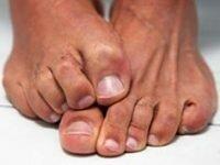 Средство против грибка на ногах